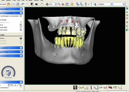Dental Implant Imaging