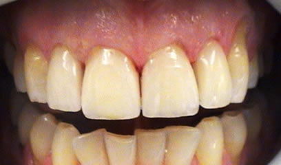 After Cosmetic Crowns treatment